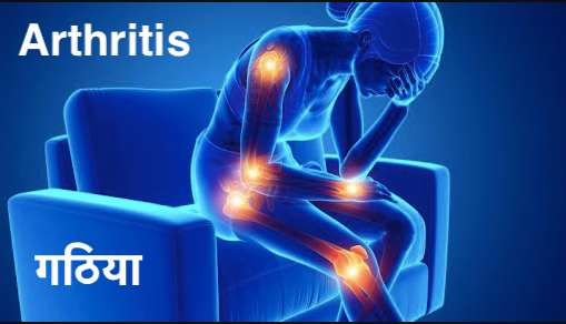 arthritis, what is arthritis, symptoms, causes, diagnosis, treatments, diet and exercise